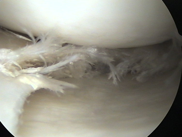 Rotura de menisco en artroscopia de rodilla